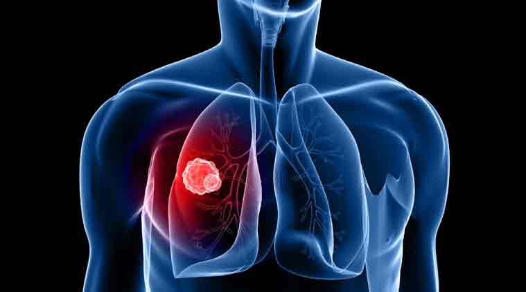 sign up for lung cancer screening Singapore