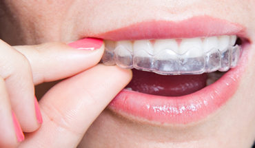How Much Do Invisible Braces Cost in Singapore